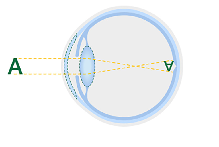 Diagram of a healthy lens