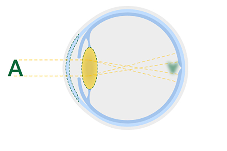 Diagram of a cloudy lens from an eye cataract