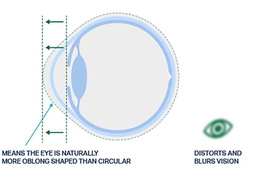 Visual showing eye shape with astigmatism